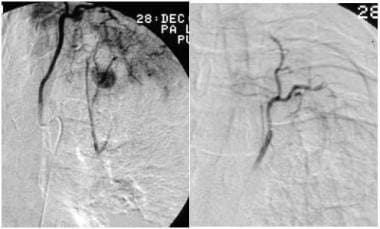 Selective bronchial arteriogram in a patient with