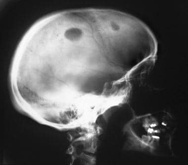 Lateral skull radiograph in a 30-year-old woman wi