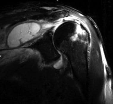 Coronal T2-weighted fat-saturated MRI of the shoul