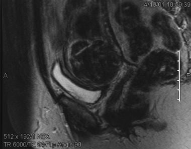 Sagittal T2-weighted MRI shows a fibroid located i