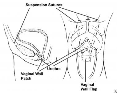 sling catheter vaginal and
