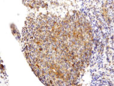 Photomicrograph shows characteristic cytoplasmic C