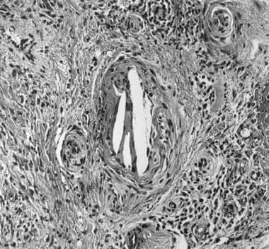 Higher magnification of the same biopsy specimen,