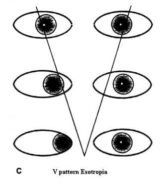 V-pattern esotropia.