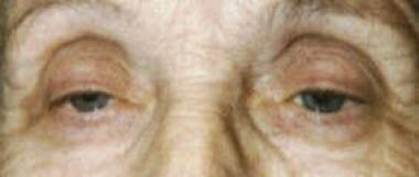 Patient with bilateral ptosis before surgery. Note