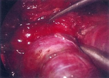 Video-assisted dissection of the right superior po