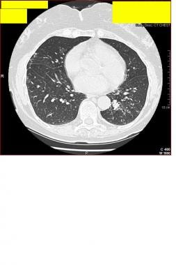 CT thorax of a 77-year-old woman who presented wit