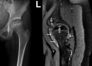 Juvenile idiopathic arthritis. Anteroposterior rad