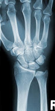 Anteroposterior view of the wrist.