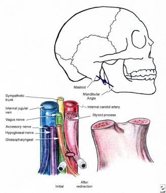 Glossopharyngeal block, peristyloid technique.