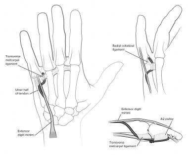 Transfer of the ulnar half of the extensor digiti