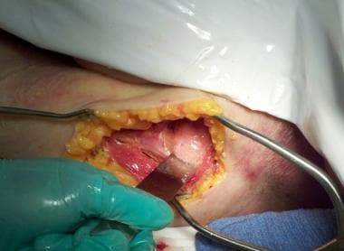 Use of a chisel to detach the subscapularis.