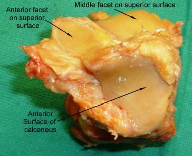 Anterior surface of the calcaneus bone.