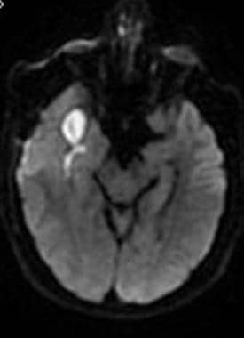 Cerebral abscess. Diffusion-weighted MRI demonstra