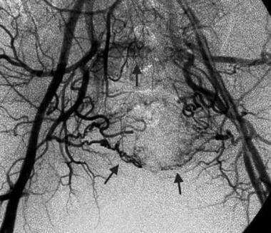 Pre-embolization, bilateral iliac angiogram in a 5