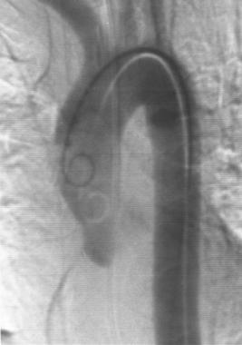 Aorta, trauma. Posteroanterior angiogram shows a s