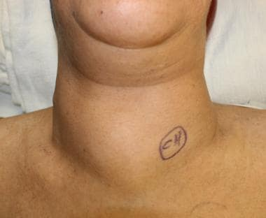 substernal goiter surgery: background, indications, contraindications, Skeleton