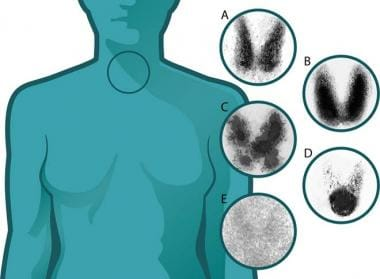 Five different scintigrams taken from thyroids wit