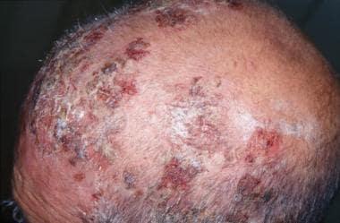 Crusted erosions on scalp (drug-induced pemphigus)