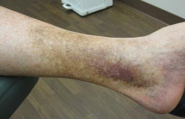 Dark patches on skin around ankles