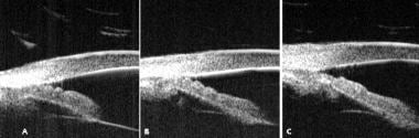 Ultrasound biomicroscopy, plateau iris syndrome. (