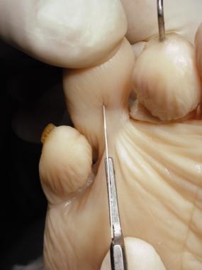 Claw toe. Make a longitudinal incision across the