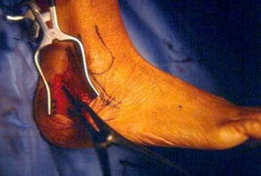Calcaneal osteotomy is distracted with laminar spr
