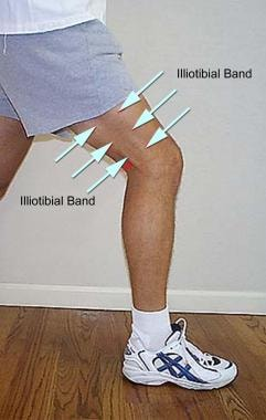 an introduction to the iliotibial band friction syndrome Iliotibial band syndrome or itbs is an overuse injury that results in localised symptoms in the  hing w, reid d iliotibial band friction syndrome—a systematic.