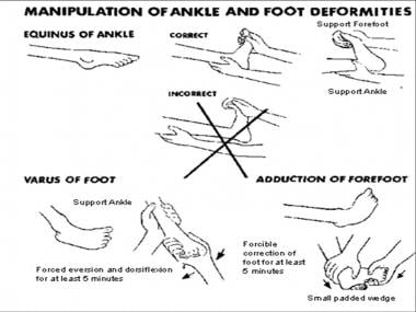 Manipulation of ankle and foot deformities.