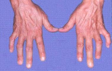 Ulnar clawing produced by loss of intrinsics to th