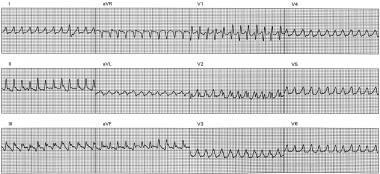 ECG shows rapid monomorphic ventricular tachycardi