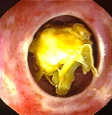 Meat (chicken) impaction within a Schatzki ring.