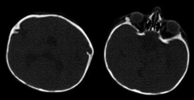 CT (bone windows) images of 11-month-old patient w