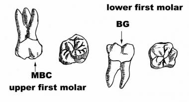 Anatomy of the first molars.