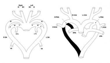 Left: Schematic diagram of the primitive pharyngea