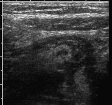 Ultrasonographic examination of the right lower qu