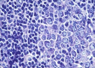 Small and large follicle center cells.