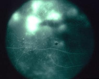 Diffuse subretinal fibrosis syndrome. Late phase o