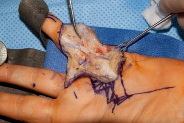 Dissection of the spiral cord in a patient with Du