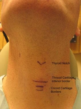 Anterior view of neck.