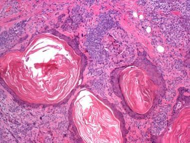 Myoepithelial carcinoma (malignant myoepithelioma)