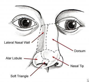 Nasal aesthetic subunits.