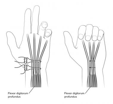Finger and wrist flexion. Side-to-side tenodesis o