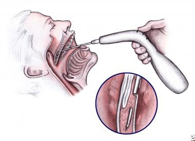 Illustration of the technique of placing Pillar im
