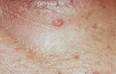 Lupus miliaris disseminatus faciei. Courtesy of Di