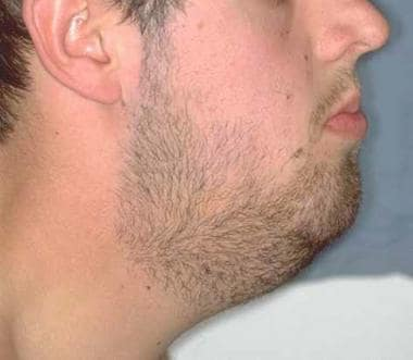 Profile view of a young adult with oral lymphangio
