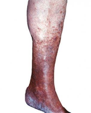 This patient with chronic stasis dermatitis exhibi