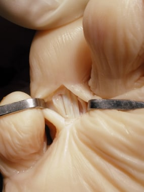 Claw toe. Split the tendon sheath to expose the fl