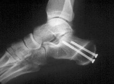 Lateral radiograph of fixated calcaneal osteotomy.