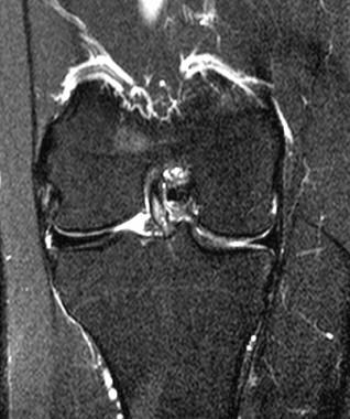 MRI scan of typical discoid meniscus. Image courte